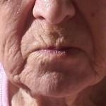 Elderly skin is wrinkled & weathered.