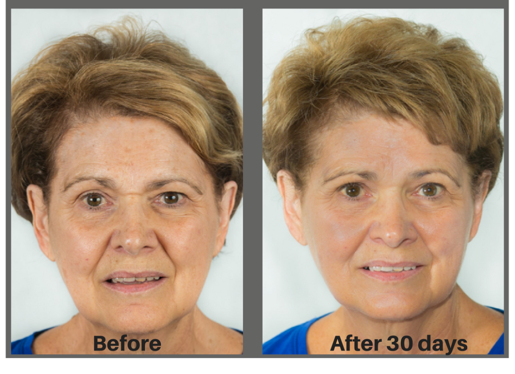 This is Nancy who used the best anti-aging skin care for 30 days.